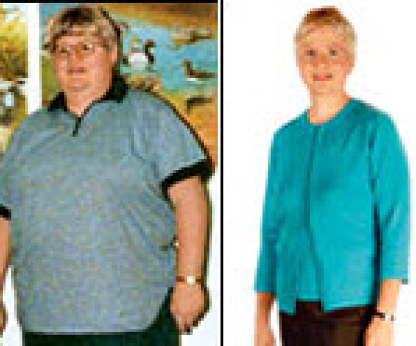 Brenda lost 125 pounds by Taking It Slow