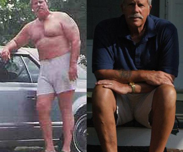 Bruce Weight Loss Story
