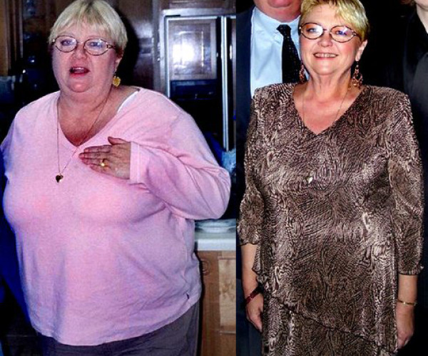 JAN Weight Loss Story