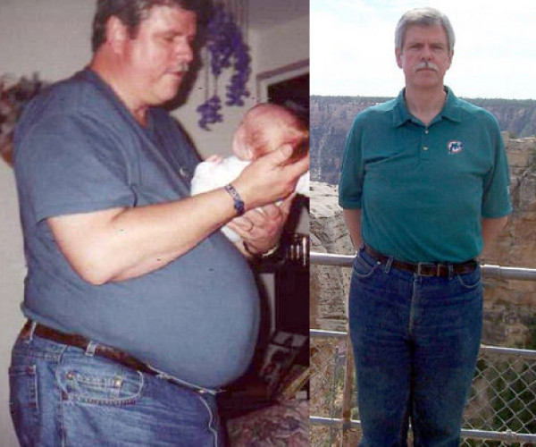 Jason Weight Loss Story