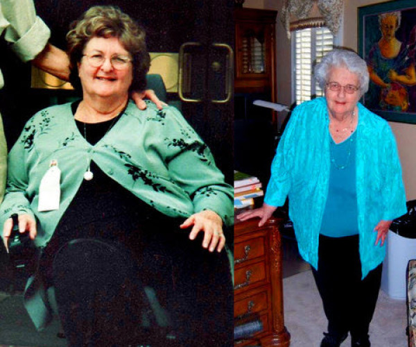 Rosalind's Weight Loss Helped her Post-Polio