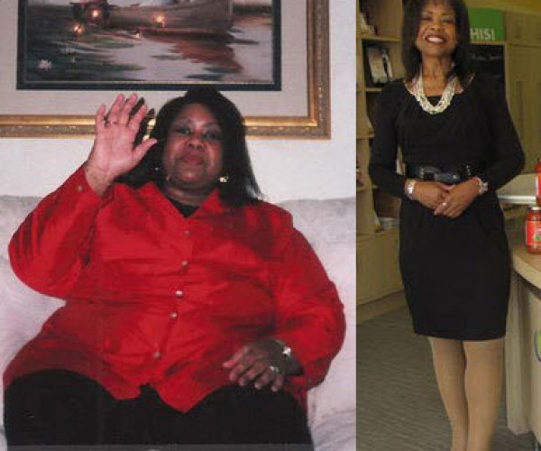 Avis Gold lost 151 pounds