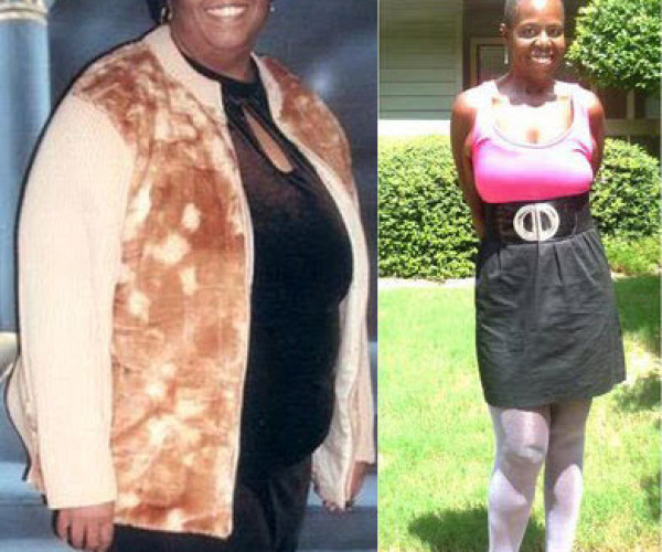 La Dawn H. Hearns of Atlanta loses 211 pounds