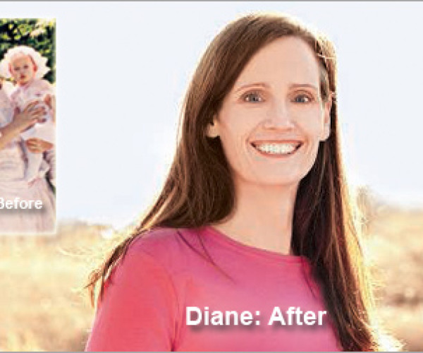 """I STOPPED MAKING EXCUSES."" DIANE'S WEIGHT LOSS TOTALED 159 POUNDS"