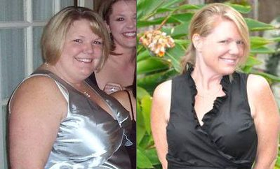 Tracey Weight Loss Story