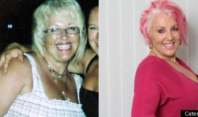 Mother, Karren Knight, Discovers Gastric Band Was Broken After Losing Six Stone