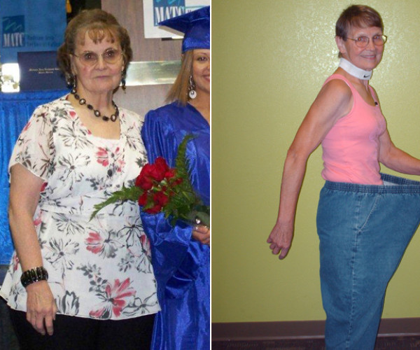 I Lost Weight: Betty Lou Sweeney, 72, Lost 115 Pounds And Set Record For Longest Abdominal Plank