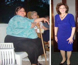Theresa Borawski loses 276 pounds..without surgery!