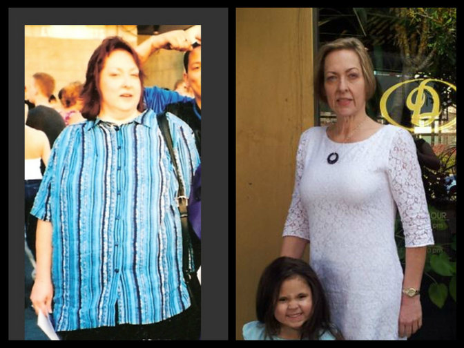 Faced with her own mortality woman loses 215 lbs