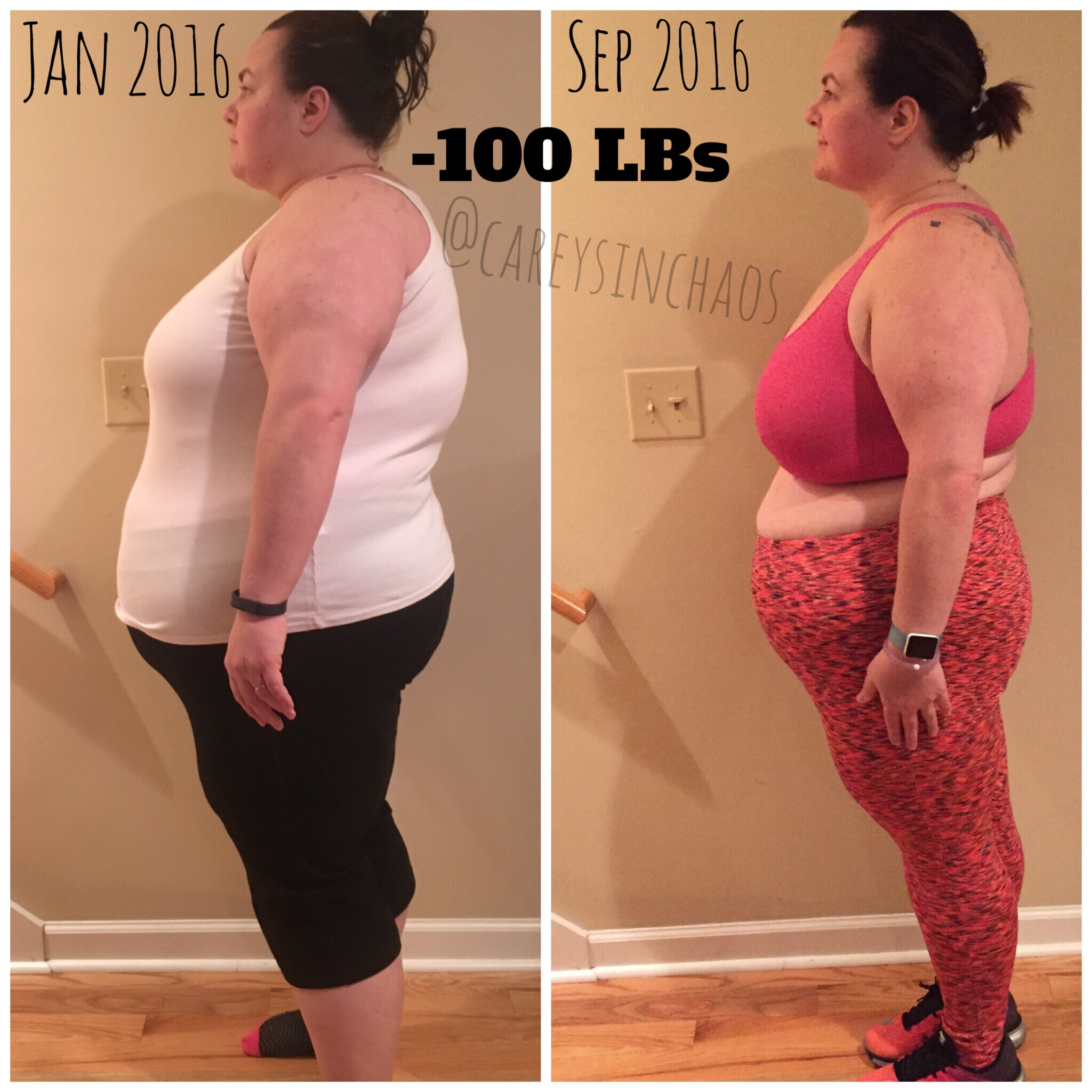 Amy lost 101 pounds! See my before and after weight loss pictures, and read amazing weight loss success stories from real women and their best weight loss diet plans and programs. Motivation to lose weight with walking and inspiration from before and after weightloss pics and photos.