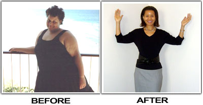 before and after alicia lost an amazing 175 pounds