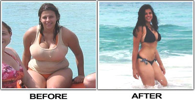 Barbara Lost Weight By Diet and Exercise
