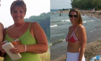 Weight Loss Before and After: Becky Lost 100 Pounds And Got A Bikini Body
