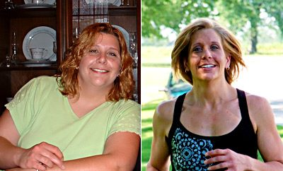 Weight Loss Before and After: Brenda Shed 107 Pounds After Back Surgery