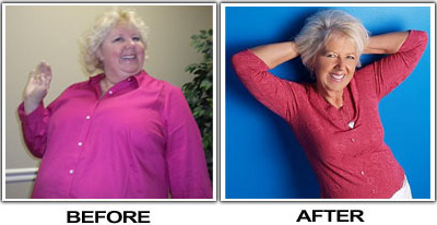 Debbi Lost Weight By Diet and Exercise