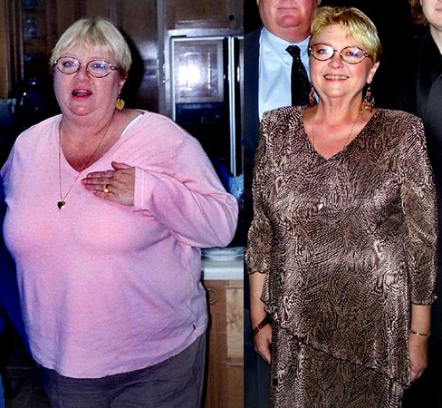Jan lost 90 pounds! See my before and after weight loss pictures, and read amazing weight loss success stories from real women and their best weight loss diet plans and programs. Motivation to lose weight with walking and inspiration from before and after weightloss pics and photos.