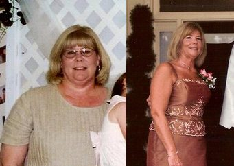 Weight Loss Success Stories: Joyce's Amazing 80 Pound Weight Loss Journey