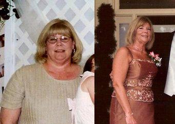 Joyce Weight Loss Story