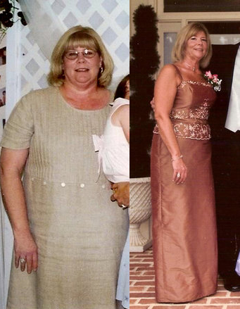 Joyce lost 80 pounds! See my before and after weight loss pictures, and read amazing weight loss success stories from real women and their best weight loss diet plans and programs. Motivation to lose weight with walking and inspiration from before and after weightloss pics and photos.