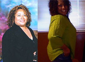 How I Lost Weight: Laurie Lost 80 Pounds To Ward Off Diabetes