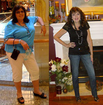 Linda lost 100 pounds! See my before and after weight loss pictures, and read amazing weight loss success stories from real women and their best weight loss diet plans and programs. Motivation to lose weight with walking and inspiration from before and after weightloss pics and photos.