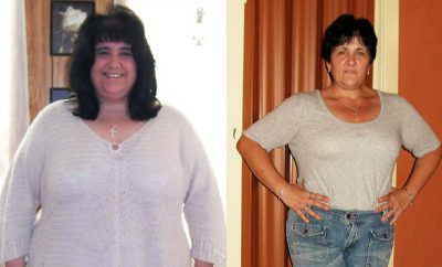Real Weight Loss Success Stories: Susan Lost 261 Pounds Without Surgery!