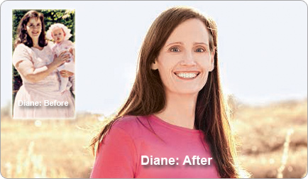 Diane lost 159 pounds! See my before and after weight loss pictures, and read amazing weight loss success stories from real women and their best weight loss diet plans and programs. Motivation to lose weight with walking and inspiration from before and after weightloss pics and photos.