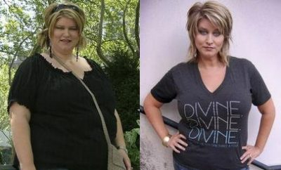 Weight Loss Before and After: Erika Lost 103 Pounds And Continues To Lose