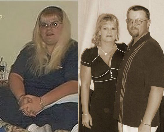 I lost 122 pounds with PCOS! Read my PCOS weight loss success story and journey from struggle to success. Support for women with PCOS who think I can't lose weight and overcome diabetes, infertility, insulin resistance. Before and after pictures, tips and Metformin for PCOS questions answered. Learn about foods, exercise, workout plans, PCOS friendly recipes, and low carb vegan diet for Polycystic Ovarian Syndrome.