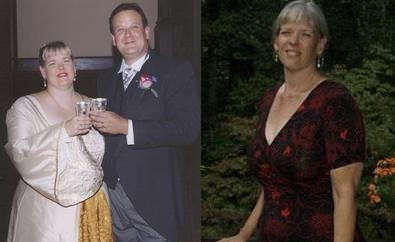 Weight Loss Before and After: Kathy Loses 143 Pounds By Counting Calories