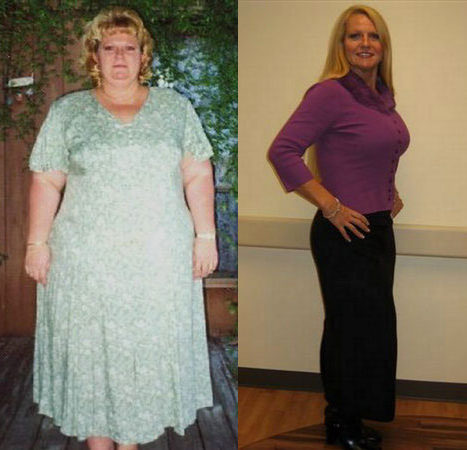 Virginia lost 60 pounds! See my before and after weight loss pictures, and read amazing weight loss success stories from real women and their best weight loss diet plans and programs. Motivation to lose weight with walking and inspiration from before and after weightloss pics and photos.