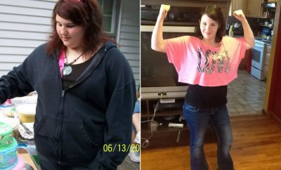 Weight Loss Before and After: Alyssa Lost 101 Pounds And Feels Fantastic