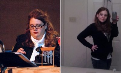 Weight Loss Before and After: Mandi Consulted A Medical Weight Loss Program And Lost 87 Pounds