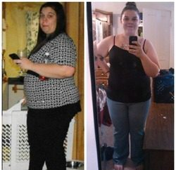 Weight Loss Before and After: Barb Lost 80 Pounds And Feels Healthy And Alive