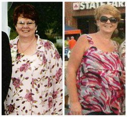 Weight Loss Before and After: I Lost 105 Pounds With Diet And Exercise