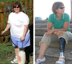 Weight Loss Before and After: My Extreme 110 Pound Weight Loss Makeover