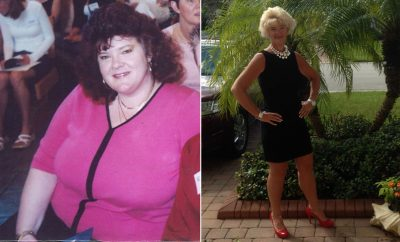 Weight Loss Before and After: Kathleen Lost 140 Pounds WIth Diet And Exercise