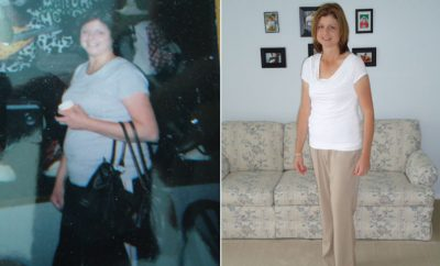 Weight Loss Before and After: Peg Bradford Started Counting Her Steps And Lost 70 Pounds