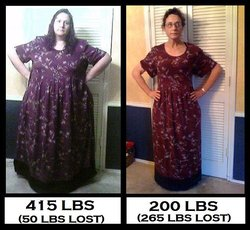 From PCOS Struggle To PCOS Success – My 265 Pound Weight Loss Journey
