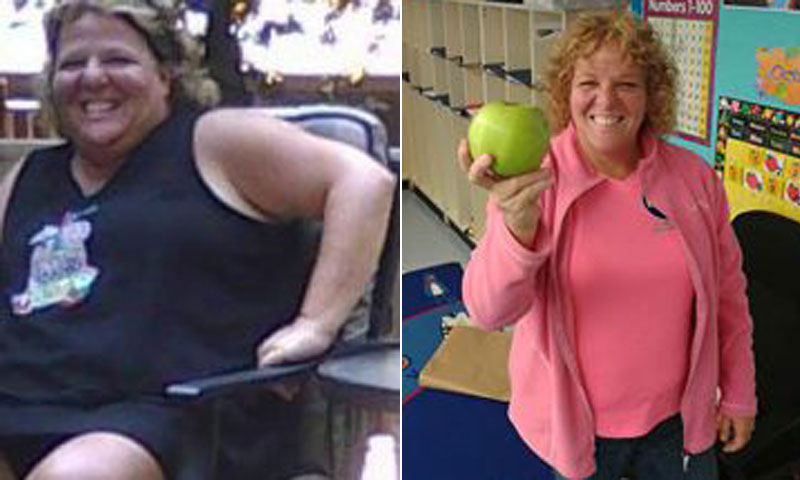Theresa lost 107 pounds! See my before and after weight loss pictures, and read amazing weight loss success stories from real women and their best weight loss diet plans and programs. Motivation to lose weight with walking and inspiration from before and after weightloss pics and photos.