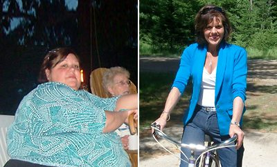 275 Pounds Lost: Theresa Relieves RA and Proves That Bariatric Surgery Isn't the Only Way
