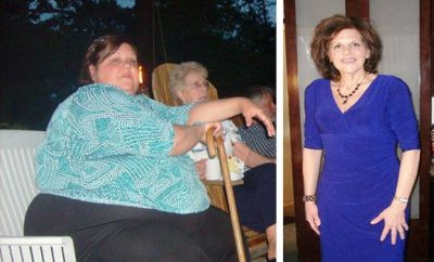 Theresa Borawski loses 276 pounds..without surgery!