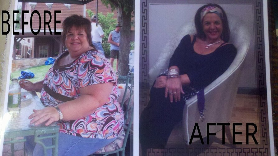 I lost 195 pounds! See my before and after weight loss pictures, and read amazing weight loss success stories from real women and their best weight loss diet plans and programs. Motivation to lose weight with walking and inspiration from before and after weightloss pics and photos.
