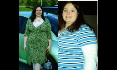 Weight Loss Before and After: I lost 75 Pounds In Eight Months With LapBand Surgery