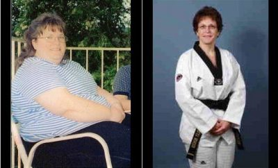 Weight Loss Before and After: Shirley Loses 150 Pounds And Feels Better