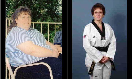 Shirley lost 150 pounds! See my before and after weight loss pictures, and read amazing weight loss success stories from real women and their best weight loss diet plans and programs. Motivation to lose weight with walking and inspiration from before and after weightloss pics and photos.