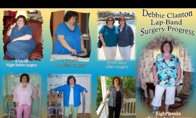 Real Weight Loss Success Stories: I Lost 65 Pounds With LapBand Surgery