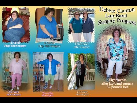 I lost 65 pounds! See my before and after weight loss pictures, and read amazing weight loss success stories from real women and their best weight loss diet plans and programs. Motivation to lose weight with walking and inspiration from before and after weightloss pics and photos.
