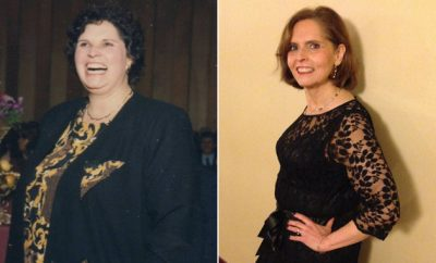 Weight Loss Before and After: I Fought My Eating Disorder And Lost 150 Pounds
