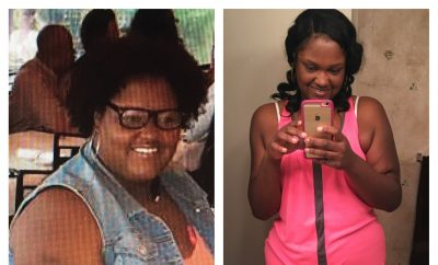 Before And After: Natasha Loses 115 Pounds After 28 Years of Obesity